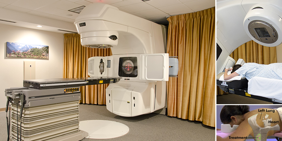 Prone Breast Radiation Therapy at IGRT